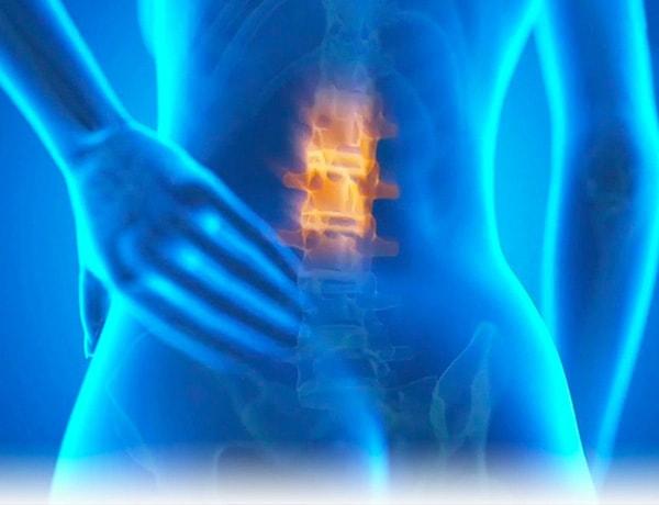 Ayurveda - Hilfe bei Rückenproblemen